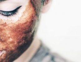 Миниатюра к статье Втираешь эту маску в рубец, шрам или морщину — и они исчезают в минуту!
